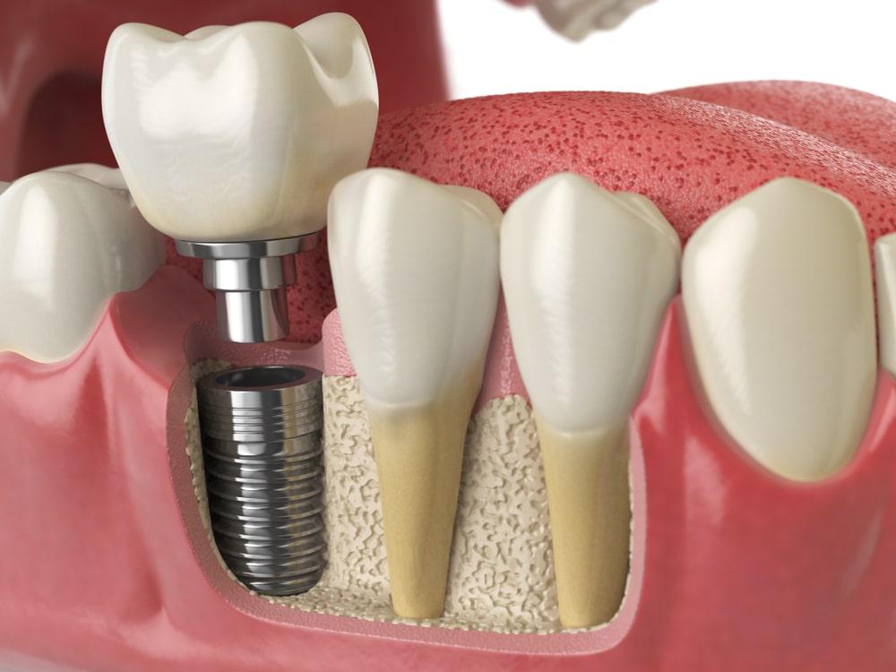 Un implant dentaire s'intègre à la mâchoire